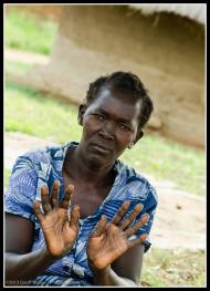 Look at my hands, please help me - Rackoko IDP Camp