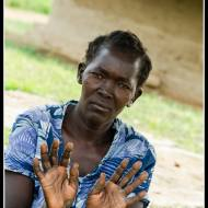 Look at my hands, please help me - Rackoko IDP Camp