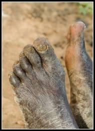 Feet - Rackoko IDP Camp