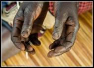 Hands - Rackoko IDP Camp